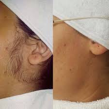 My Skin Laser Clinic