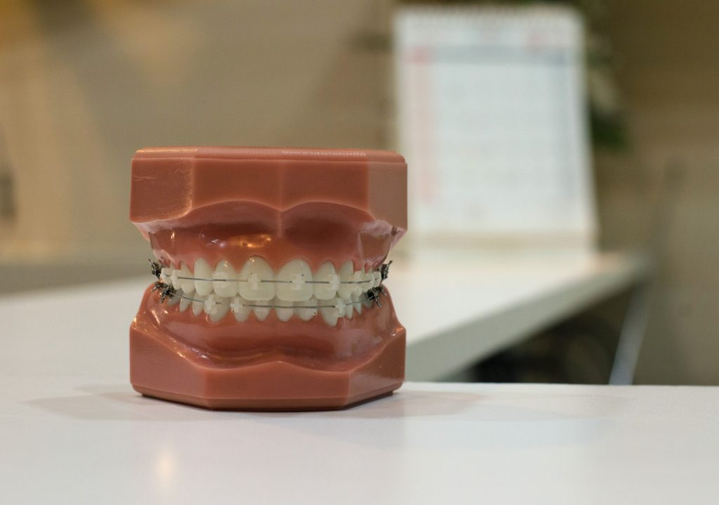The Most Common Reasons To Have A Loose Tooth