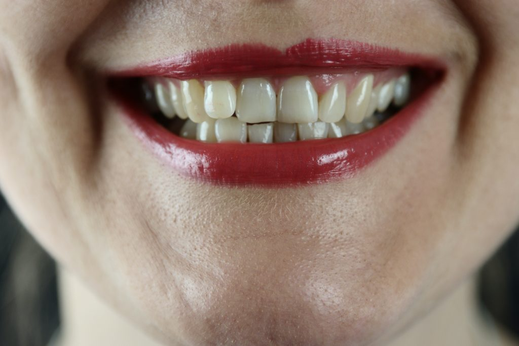 3 home remedies to cure your gingivitis